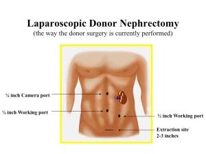 KidneySolutions-Ikeja-Lagos-Transplant donation