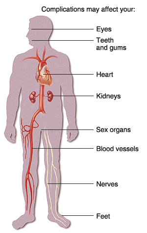 Sexual problems related to diabetes